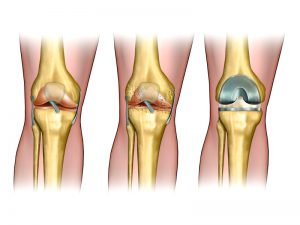 knee replacement