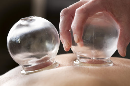 Chinese traditional medicine, cupping therapy